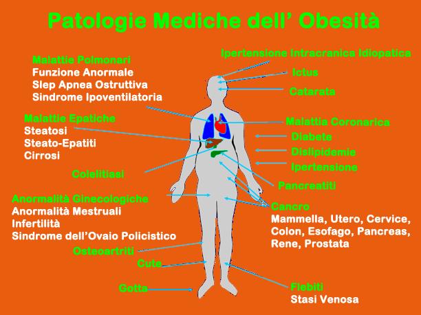 Esercizi per perdita di peso di uno stomaco e parti per ladolescente